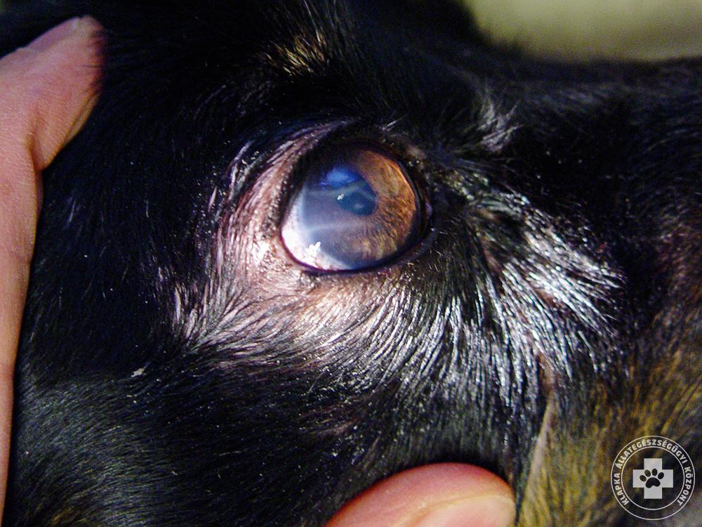 szembetegség glaukóma