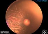 Collie szembetegség (CEA)